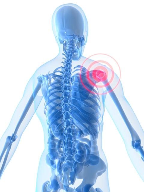 Illustration showing shoulder pain
